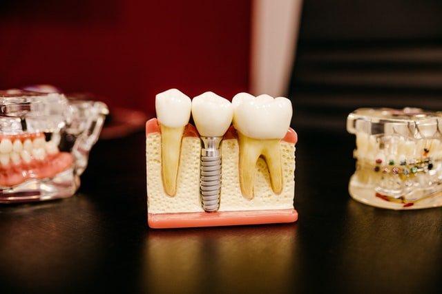 Dentist Strathroy Ontario